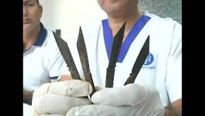 Cop swallowed 40 knives, survived!